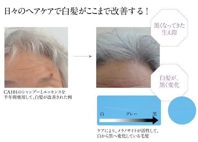 白髪改善事例